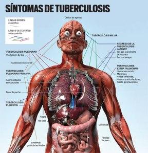 obat tradisional TBC